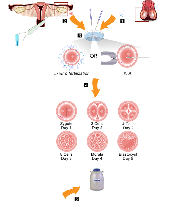Embryo Banking Procedure